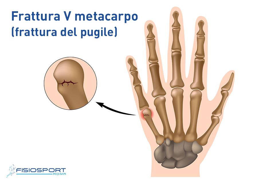 frattura V metacarpo