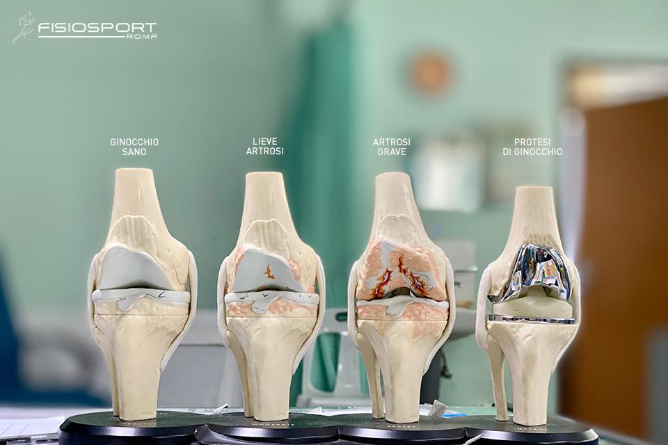 Protesi del ginocchio